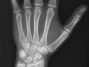 X-Ray Repair